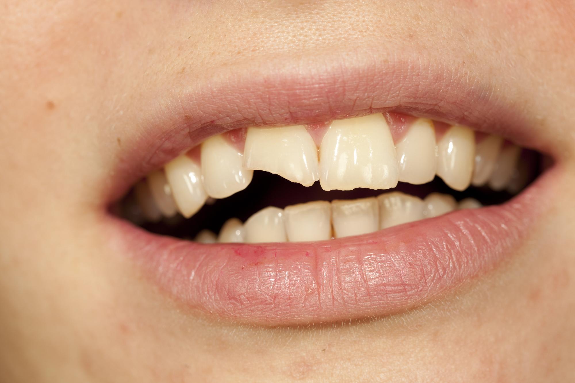 Fortvivl ikke over en knækket tand
